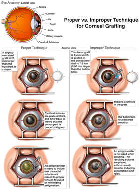 Proper vs. Improper Technique for Corneal Grafting