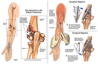 Comminuted Left Elbow Fractures with Surgical Repairs