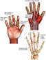 Right Hand Injuries