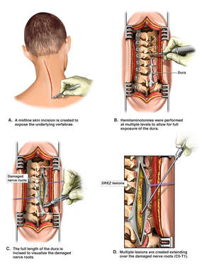 Multiple Cervical Spine Radiofrequency DREZ Lesions