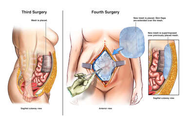 Additional Surgical Repairs and Grafting of Open Abdominal Wall Wound