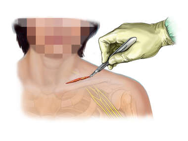 Supraclavicular Incision to Access Brachial Plexus