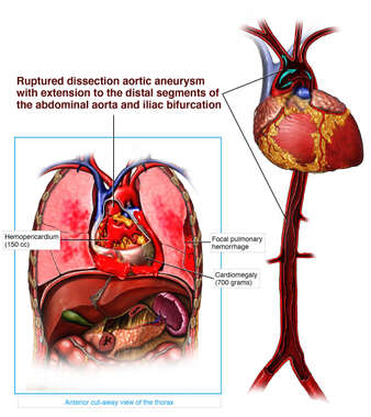 Dissecting Aortic Aneurysm