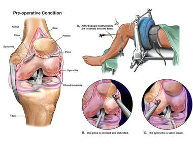 Left Knee Injuries with Arthroscopic Repairs