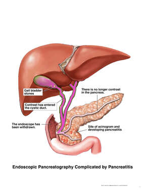 Endoscopic Pancreatography Complicated by Pancreatitis