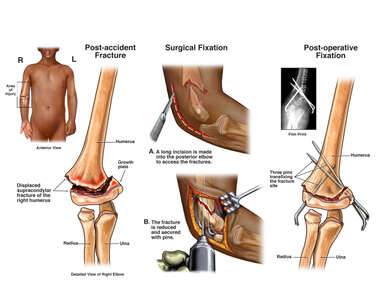 Right Elbow Fractures with Surgical Fixation