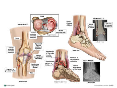 Bilateral Ankle Fractures and Right Knee Injury