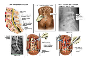 Lumbar Spine Injury with Surgical Decompression and Fusion