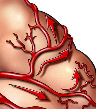 Blood Supply to the Brain