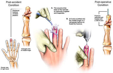 Right Middle Finger Fracture with Surgical Fixation
