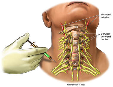 Cervical Transforaminal Epidural Injection