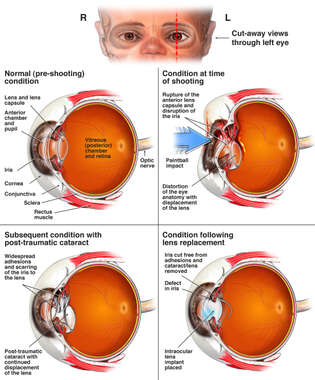 Traumatic Left Eye Injuries