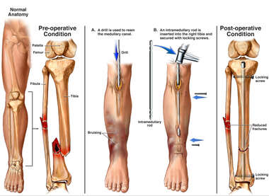 Lower Leg Fractures (Broken Tibia and Fibula) with Surgical Fixation