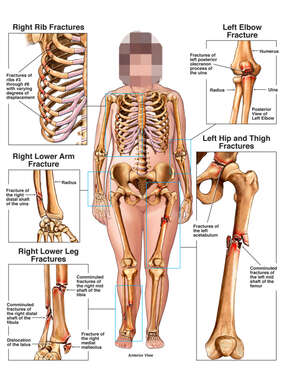 Female Skeletal Figure with Post-accident Fractures to the Thorax, Elbow, Wrist, Hip and Legs Bilaterally