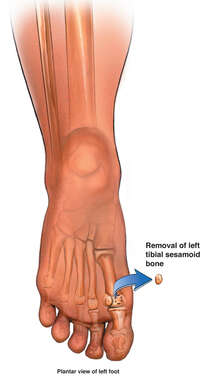 Tibial Sesmoid Bone Removal
