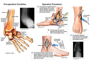 Right Foot and Ankle Fractures with Surgical Fixation