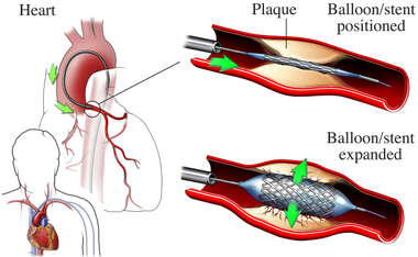 Position of Balloon/Stent