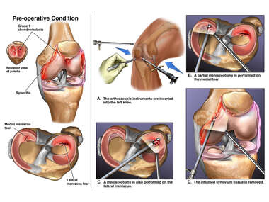 Left Knee Arthroscopic Surgery