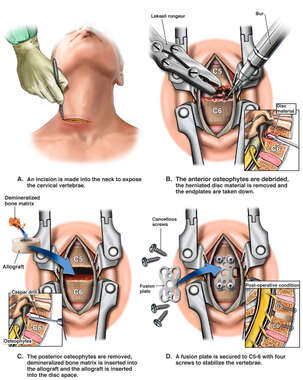 Surgical Discectomy and Fusion Procedure