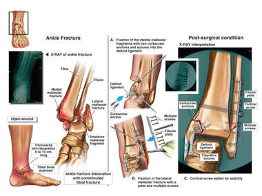 Left Ankle Injuries with	 Surgical Fixation