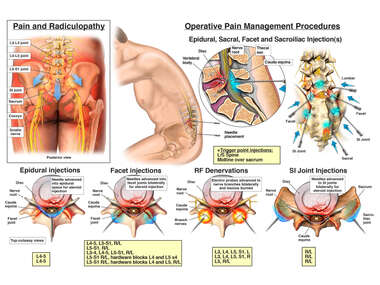 Post Injury Low Back Pain Management Treatments