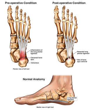 View of Bottom and Side of Foot with Bone Spur and Long Plantar Ligament Injury