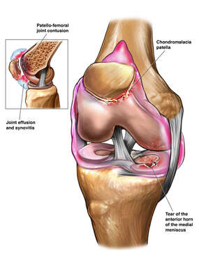 Pre-Operative Right Knee Injuries