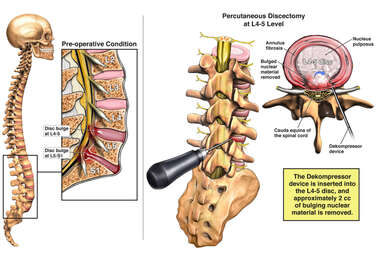 Lumbar Disc Injuries with Surgical Decompression