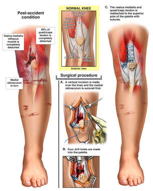 Left Knee Injuries with Surgical Repair