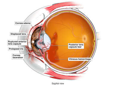 Traumatic Eye Injuries