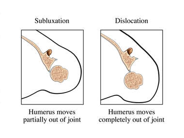Shoulder Instability: Subluxation and Dislocation