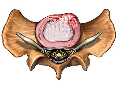 Anterior Lumbar Disc Herniation