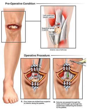 Left Knee Injury with Surgical Repair