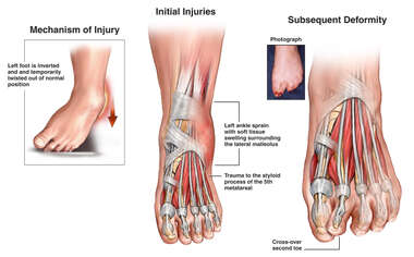 Post Traumatic Left Foot Injuries and Subsequent Deformity