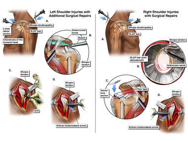 Bilateral Shoulder Repairs
