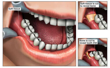 Surgical Exposure For Wisdom Tooth Extraction