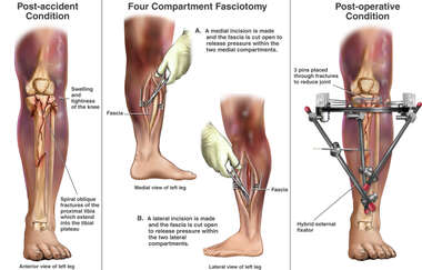Left Tibial Fractures with Subsequent Four Compartment Fasciotomy