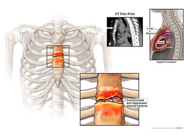 Comminuted Sternum Fracture