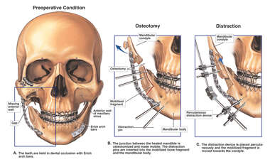 Surgical Reconstruction of the Mandible