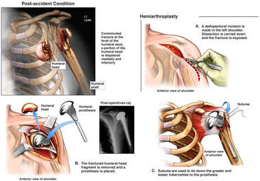 Left Shoulder Injury with Surgical Replacement