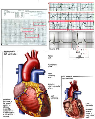 Fatal Myocardial Infarction