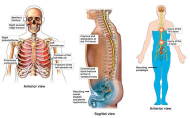Thoracic and Spinal Injuries with Resulting Paraplegia