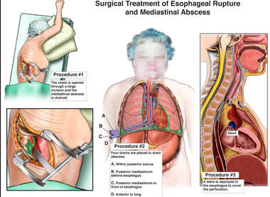 Surgical Treatment of Esophageal Rupture