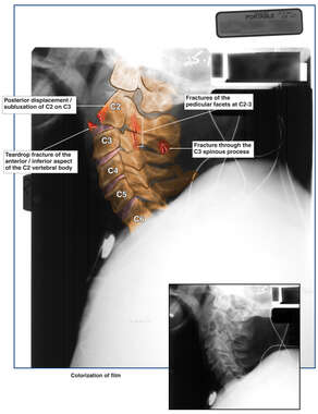 Cervical Spine X-ray