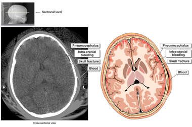 Brain CT Scan
