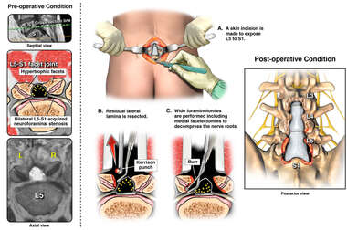 Redo Lumbar Spine Surgical Procedure