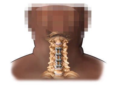 Anterior View of Cervical Fusion in Obese Black Male