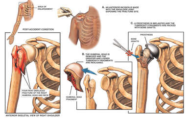 Post-accident Right Shoulder Fracture Dislocation with Surgical Joint Replacement