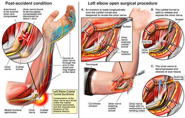 Left Elbow Cubital Tunnel Syndrome with Decompression Surgery