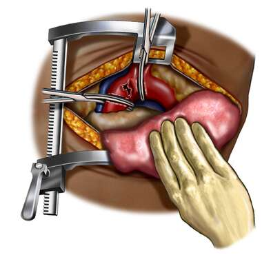 Arterial Repair via Thoracotomy